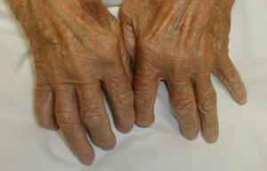Алкохол в умерени количества пази от ревматоиден артрит