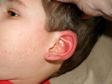 """""""Горят"""" и двете ви уши? Народът дава обяснение"""